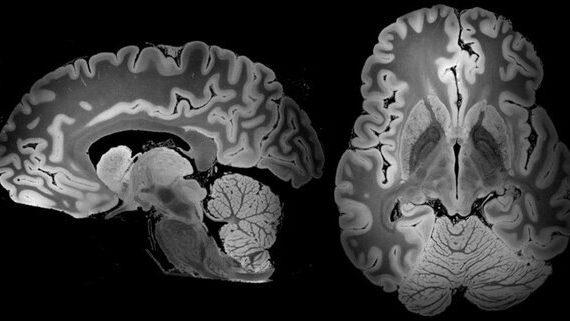 Этот МРТ-снимок мозга делали на протяжении 100 часов 9