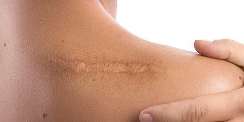 Откуда берутся шрамирующие клетки? 2
