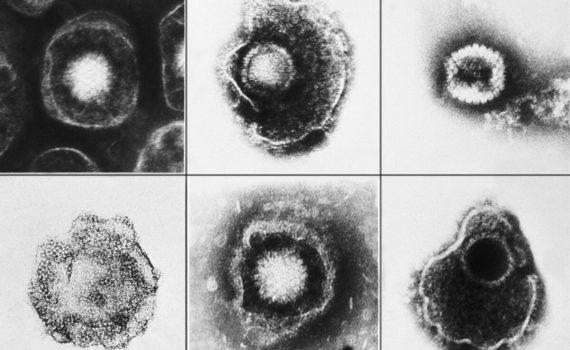 Вирус герпеса и болезнь Альцгеймера: связи не находят 2